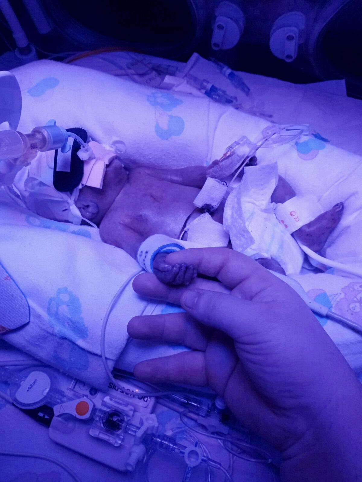 Когда маме наконец разрешили взять руку Арчи в свою, это стало самым волшебным моментом в ее жизни