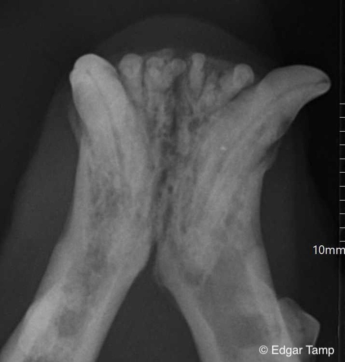 Resorptsiooni kahjustus röntgenpildil