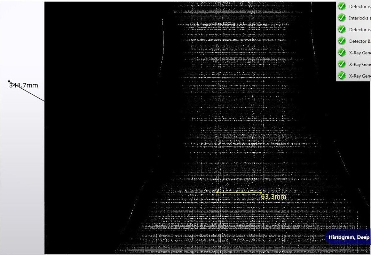 MTA röntgeni nägemus Russalka vasakust jalast