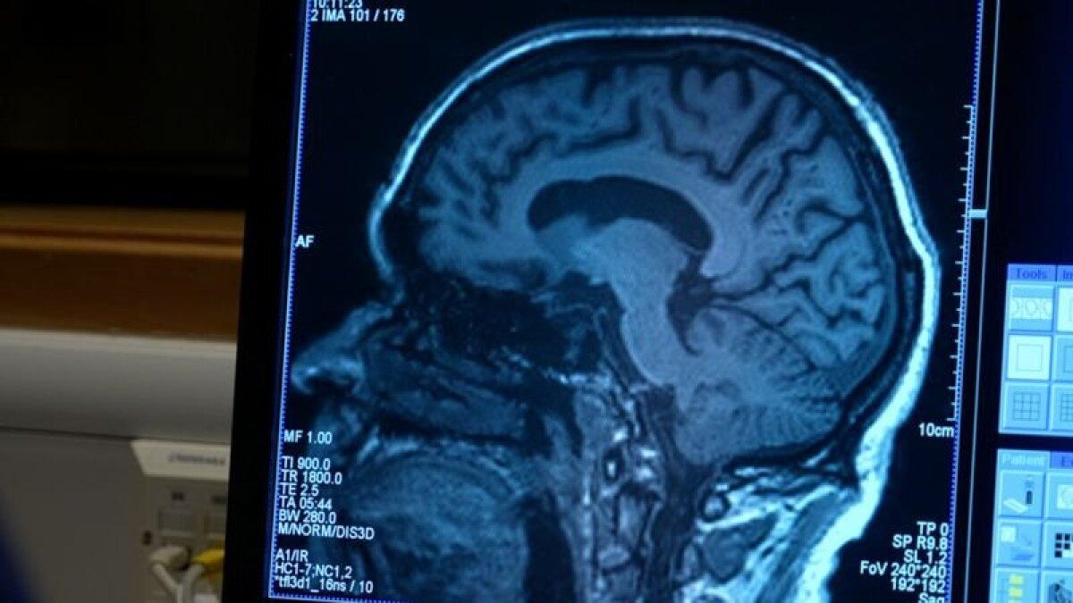 Ученые отметили, что мозг пациентов работает лучше после применения лекарства