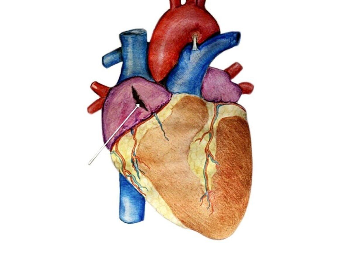 SALAPÄRANE AUK: Auk südamekojalei näidanud end ei ultrahelis egakompuutertomograafis.