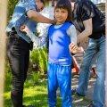 Детям отказывают в компрессионной одежде: министр социальной защиты на стороне чиновников