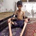 Süüria presidendi toetajad mõnitavad piiratud linnas nälgivaid inimesi hõrgutiste fotodega