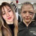 Cheyenne Hanson enne ja pärast poksimatši