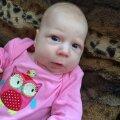 Ajukahjustusega beebi vajab toidusegude soetamiseks annetajate tuge