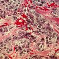 Rinnavähi rakud suurendatuna (Foto: Wikimedia Commons / USA riiklik vähiinstituut, dr Cecil Fox)