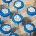 За сутки в Эстонии выявлено 532 случая заражения коронавирусом, умерли три человека