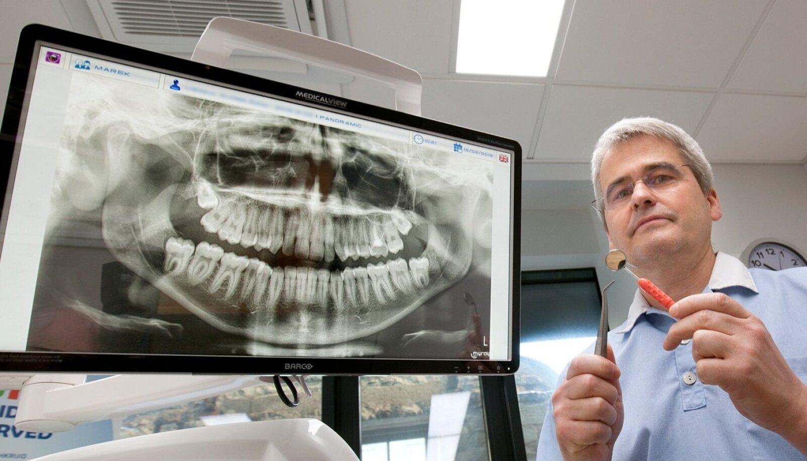 """""""Kui inimene pole aastaid hambaarsti külastanud, on jätnud unarusse terviseteadlikkuse, siis hambahaiguse tagajärgede parandamiseks võib kuluda hoopis rohkem raha, kui on riigi toetus,"""" teatab Eesti Hambaarstide Liidu president Marek Vink."""