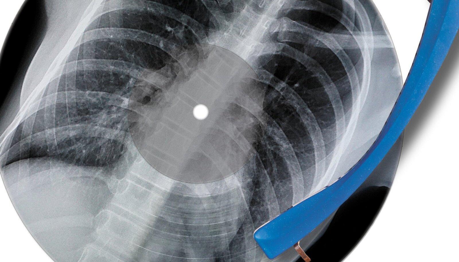 1950. aastatel oli röntgenpildiplaat paljudele ainus võimalus kaasaegset popmuusikat kodus kuulata.