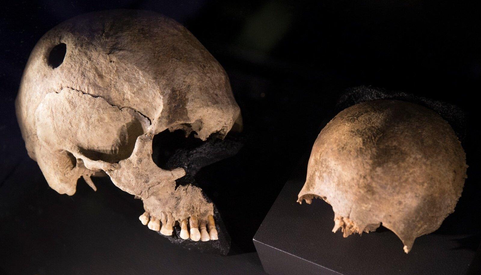 Kalmeleiud peegeldavad viikingite karme elutingimusi. Pildil kolju, millel on näha jälgi operatsioonist, mille käigus kolju sisse puuriti auk