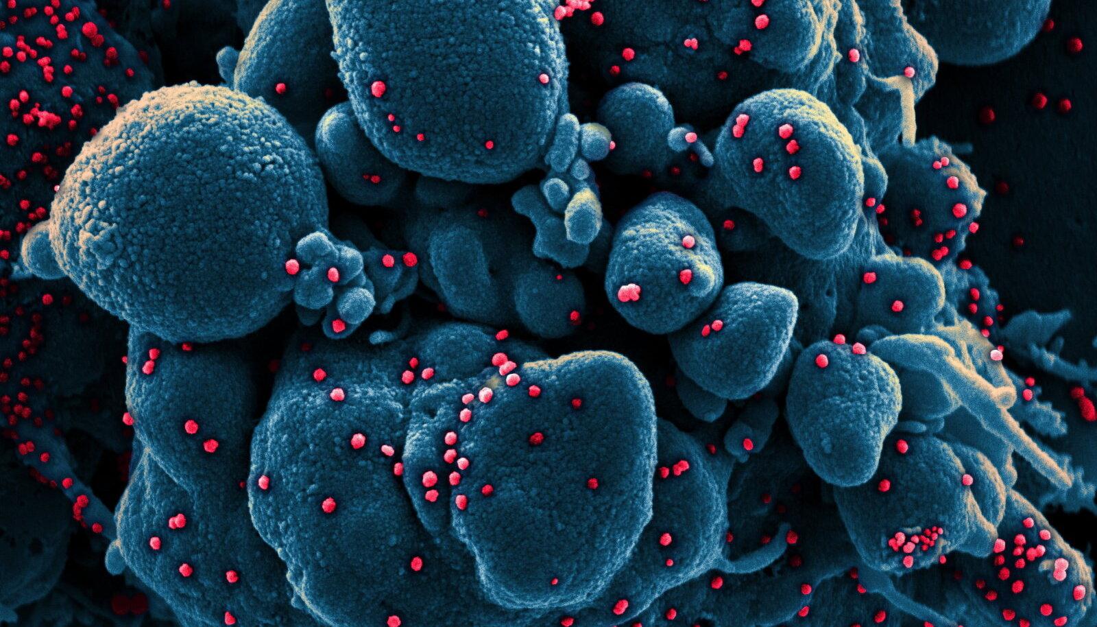 Koroonaviirusega nakatunud ja seetõttu surev inimrakk