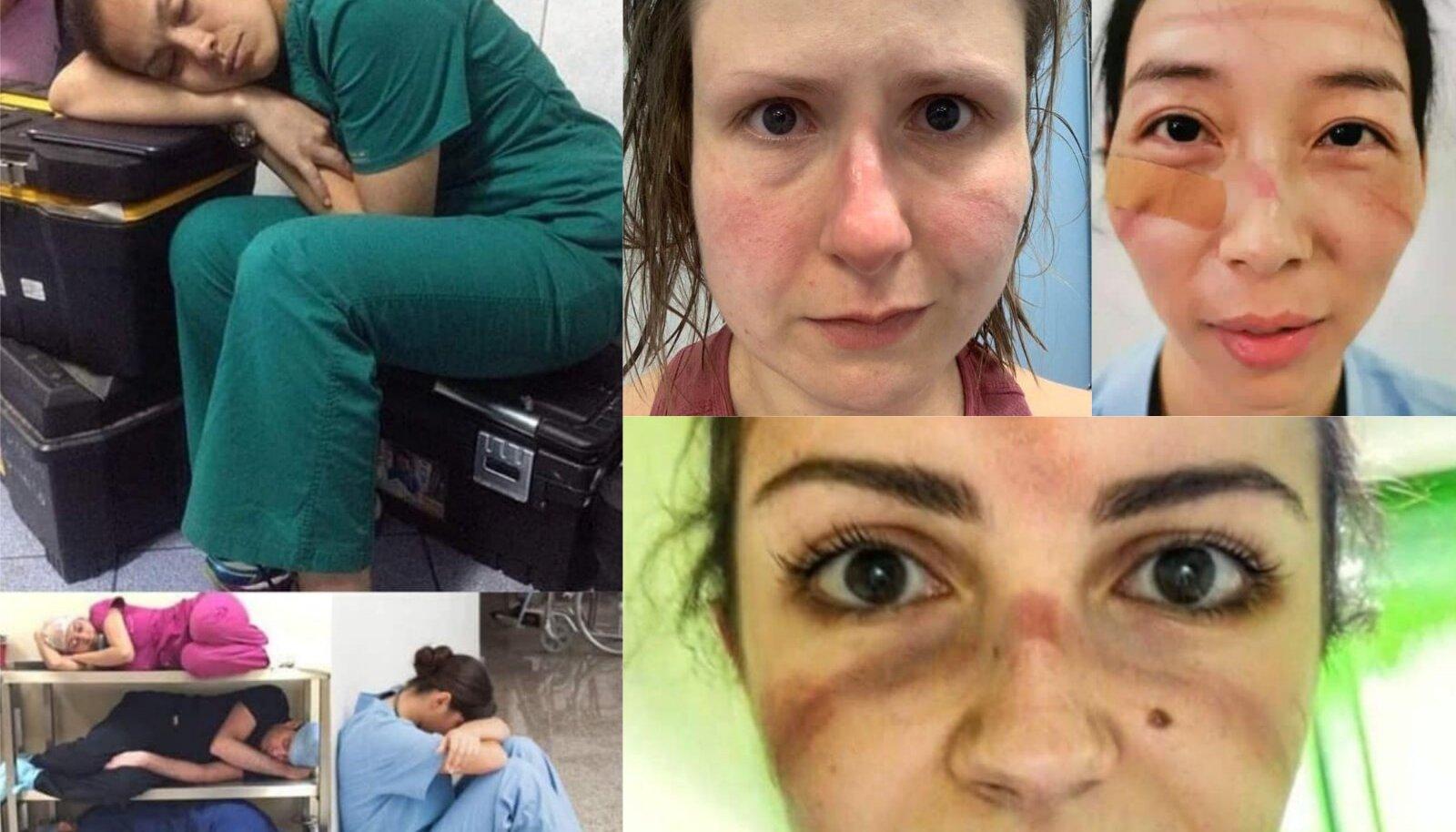 PANDEEMIA KURNAB: Eesliinil töötavad medõed asusid sotsiaalmeedias jagama tööpäeva lõpus tehtud pilte enda nägudest. Pidurdage viiruse levikut, on nende palve.