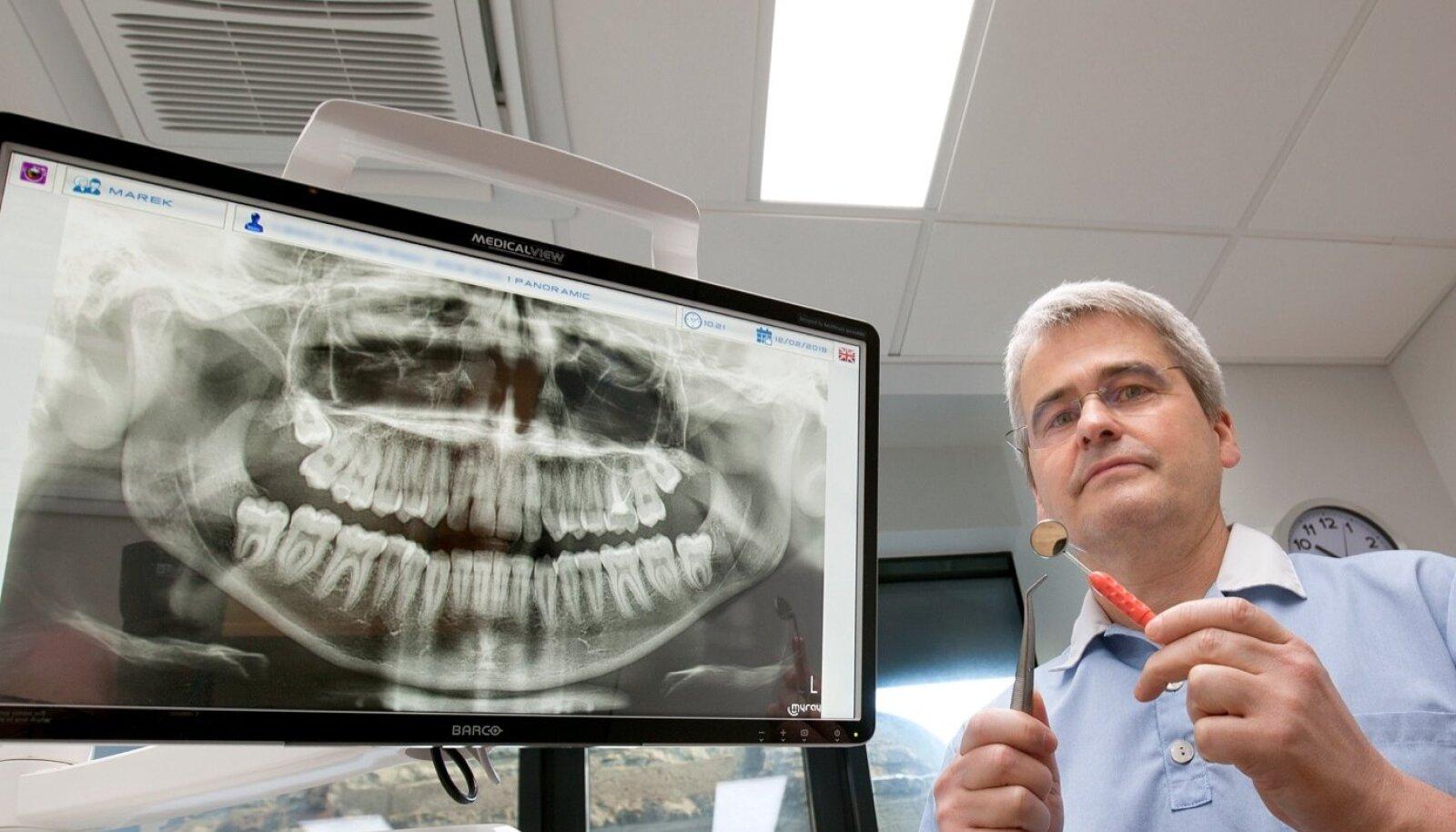 Hambaarstide liidu president Marek Vink arvab, et inimene ei peaks endale otsima hambaarsti, kes on hambaravihüvitise süsteemiga liitunud.