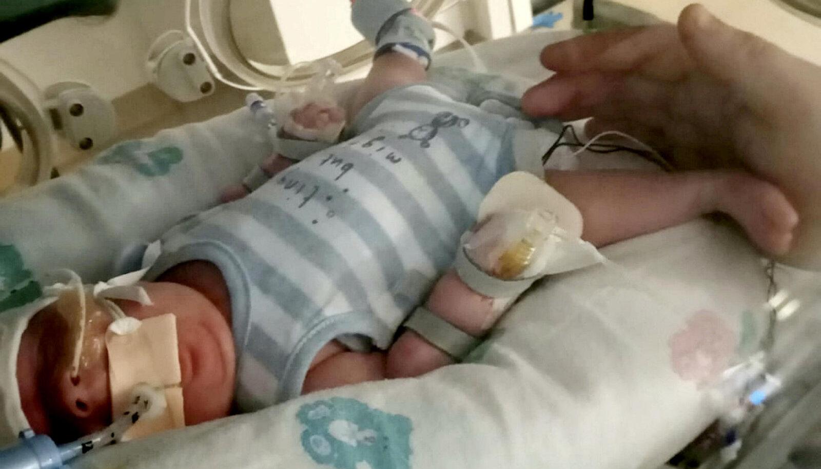 Арчи родился недоношенным