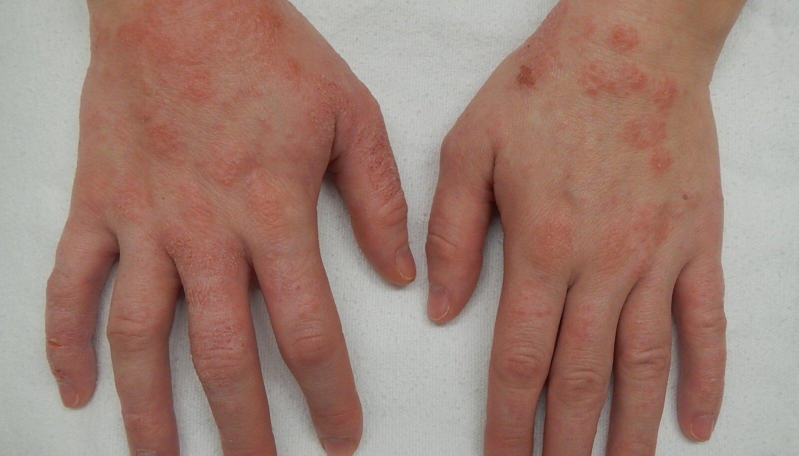 Dermatiit.