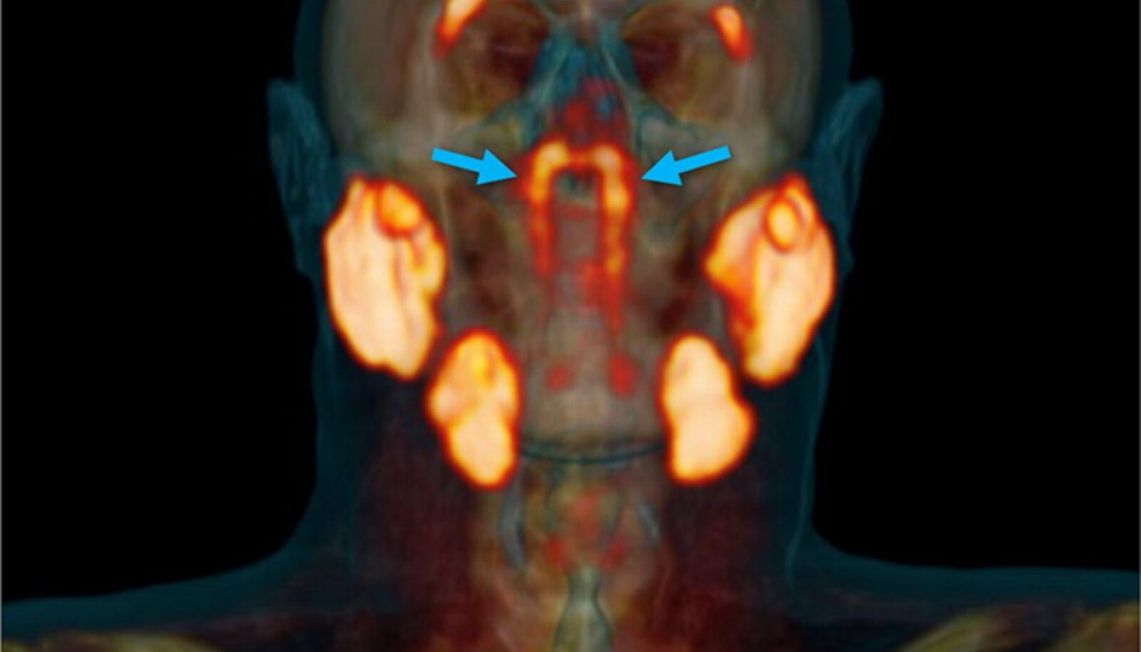 Foto: Valstar et al., Radiotherapy and Oncology, 2020