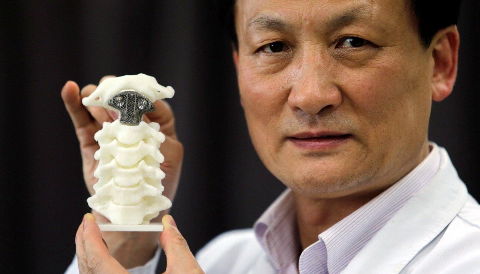 Esimesena maailmas suudeti luuvähi all kannatavale patsiendile kolmemõõtmelisel printeril valmistatud selgroolülitugi panna Pekingi ülikoolis.