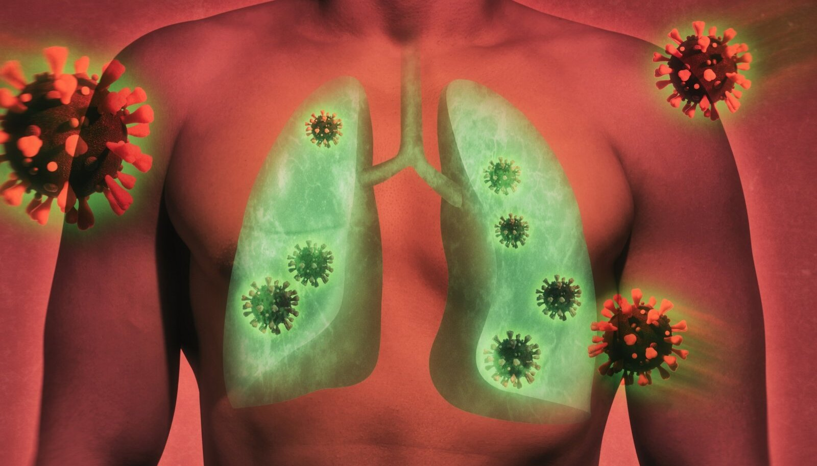 Illustrative,Image,Of,Lung,Damage,By,Coronavirus,Covid-19.,Human,Anatomy.