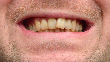 Ettevaatust! Toiduained ja harjumused, mis hambad kollaseks muudavad