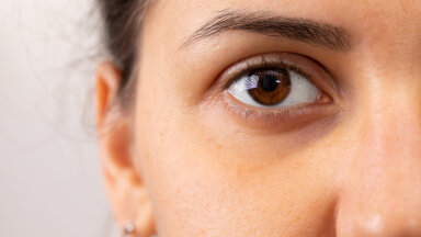 Silmaalused turses ja tumedad? Üks lihtne nipp aitab silmaaluseid kiiresti turgutada