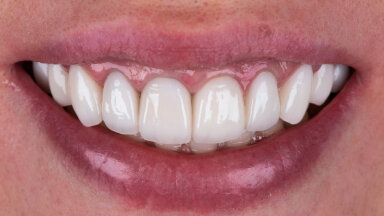 Hambaarst avaldab, miks ikkagi peab kord aastas kindlasti hambaarsti juures käima