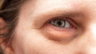 Naised, on mõned levinud vead näohoolduses, mille tõttu jääb nahk enneaegselt vanaks