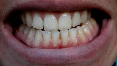 Hambaarstid avaldavad VIIS märki, mis vihjavad, et krigistad öösiti hambaid