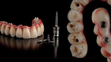 Kruvikinnitusega implantaatidele kinnituv mitte-eemaldatav sild. Valmistatud tsirkooniumist ja kattekeraamikaga. Perident hambakliiniku arst Ištvan Lakatoš. Tehnik Jörg Iowa Iowadent