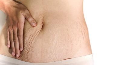 FOTOD   Killuke kehapositiivsust! Nelja lapse ema jagab reaalseid pilte oma sünnitusjärgsest kehast