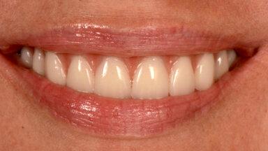 ENNE JA PÄRAST | Puuduvad hambad on minevik