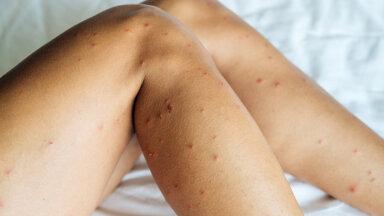 Tüütud sääsed ja parmud ning ohtlikud puugid. Mis ravib putukahammustust kõige kiiremini?