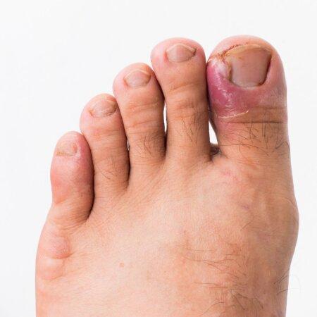 Sissekasvanud küüs põhjustab punetust, valu ja põletikku.